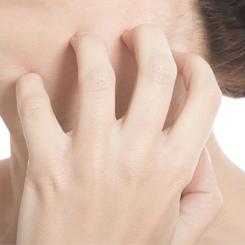 ekcéma dermatitis